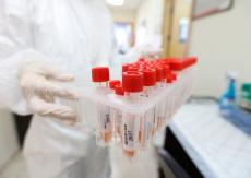 تسجيل حالتي وفاة بفيروس كورونا بصفوف جالياتنا في البرازيل وايطاليا